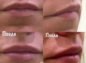 Контурная пластика(увеличение губ)